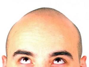 Neem geen genoegen met haaruitval en kies voor een haartransplantatie